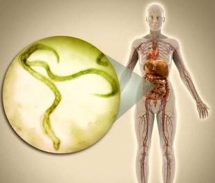 komplex tisztítására paraziták test vásárolni